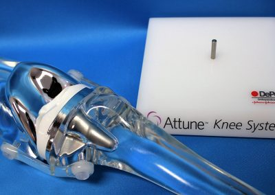Clear knee model with replicated implants