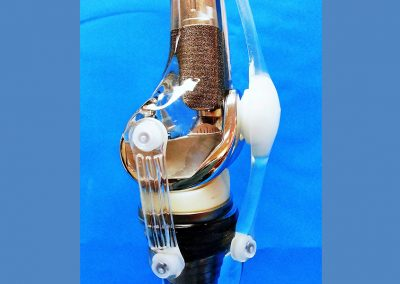 Acrylic knee model with rubber ligaments